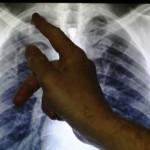 WHO kế hoạch mới để tiêu trừ bệnh lao