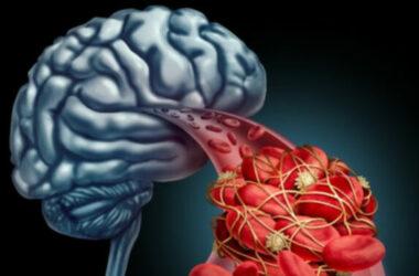Kỹ thuật mới điều trị Alzheimer